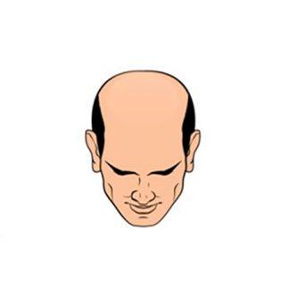 Облысение, рост волос