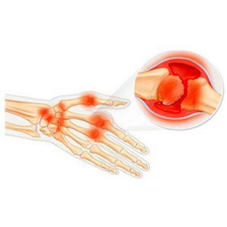 Артрит, заболевания суставов